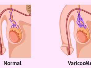 Varicocèle traitement non chirurgical