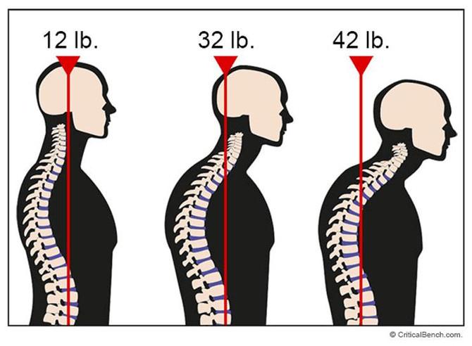 Forward head posture (poking neck)