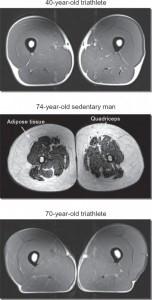 sarcopenia images