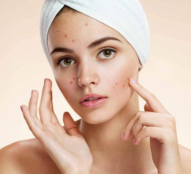 Acne Therapy