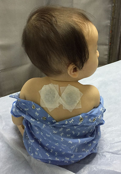 cough acupoint, pediatric, children, child, external medication, medical plasters, medicinal plasters