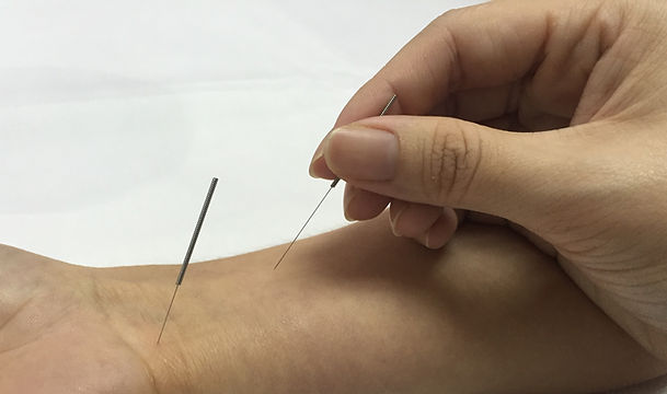 acupuncture shandong tcm
