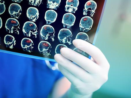 Όγκοι εγκεφάλου - είναι πάντα κάτι κακό;
