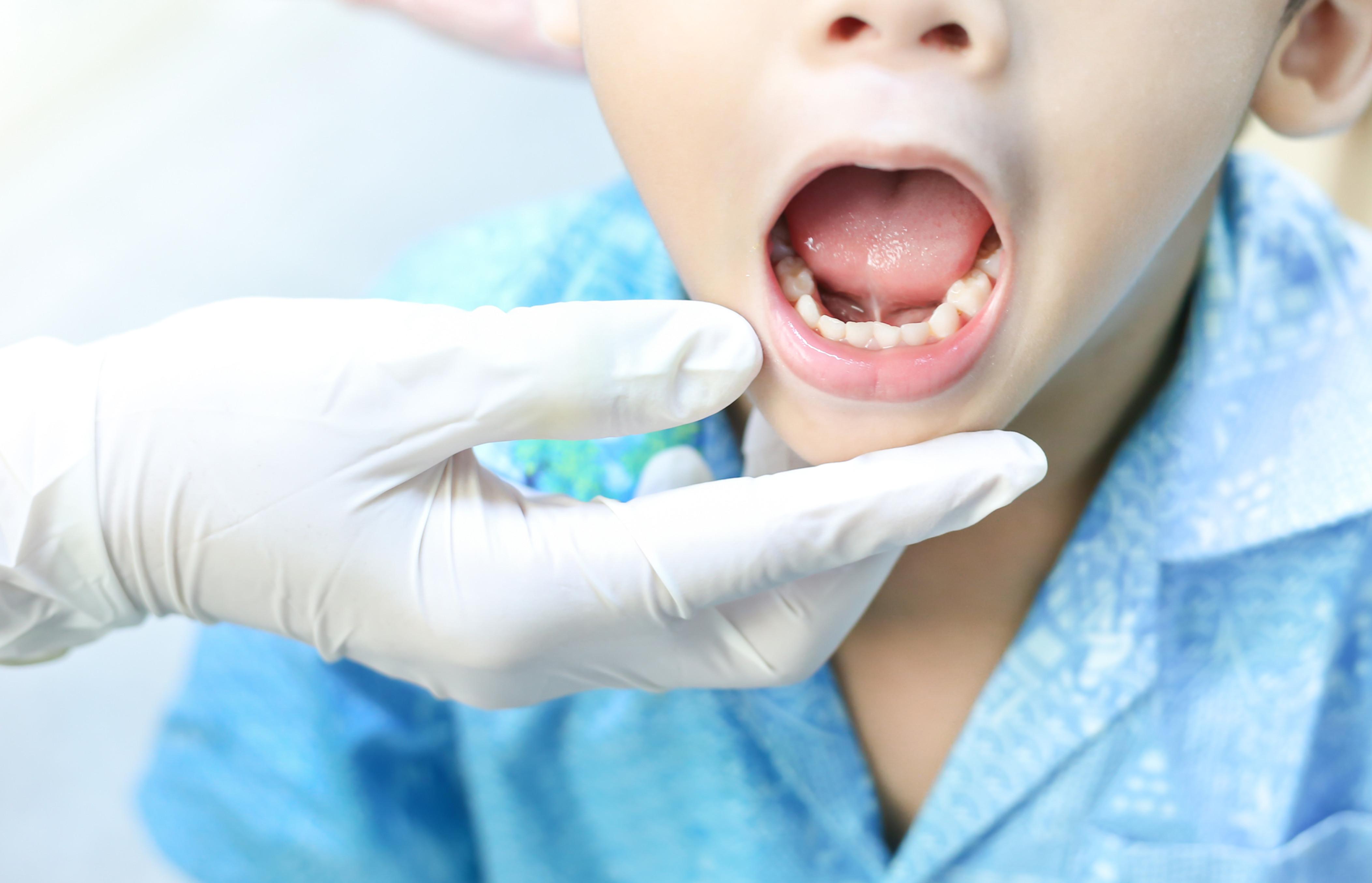 Zungenband Diagnostik/Vorbereitung