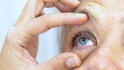 Nova tecnologia para glaucoma pode evitar cirurgia invasiva