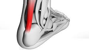 New Exercises For Fixing Achilles Injuries