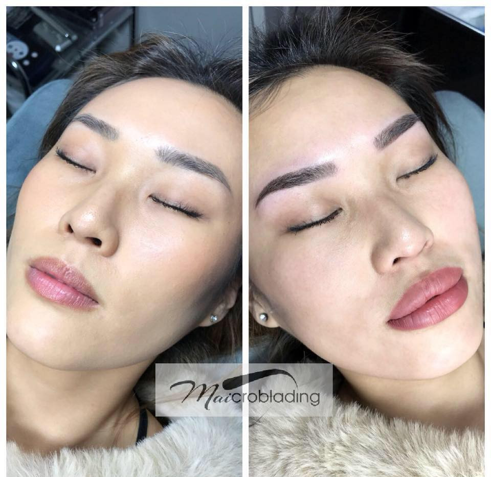 Freshly done lip micropigmentation