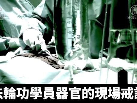 【解讀】中共名醫移植肺臟治新冠病患,暴露四大驚人疑點(2020.3.2)