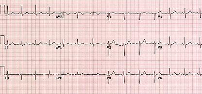 ECG-Question-5-normal.jpg
