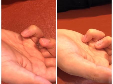 指の手術をしなくて良くなりました!!画像あり!!