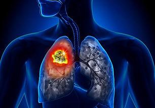 tumore-al-polmone-2-1000x700-1.jpg
