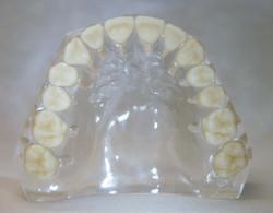 dentatura mascella