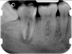 endodonzia 02