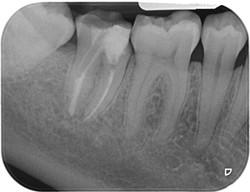 endodonzia 04