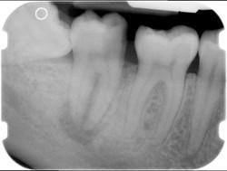endodonzia 01
