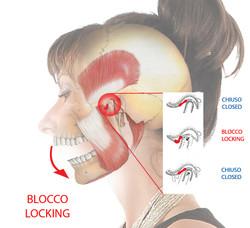Articolazione Temporo Mandibolare Blocco (Locking)