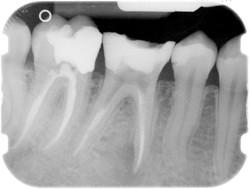 Endodonzia 3
