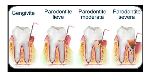 paradontiti.png