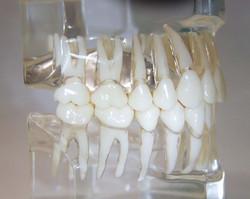dentatura destra