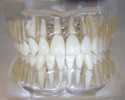 dentatura fronte
