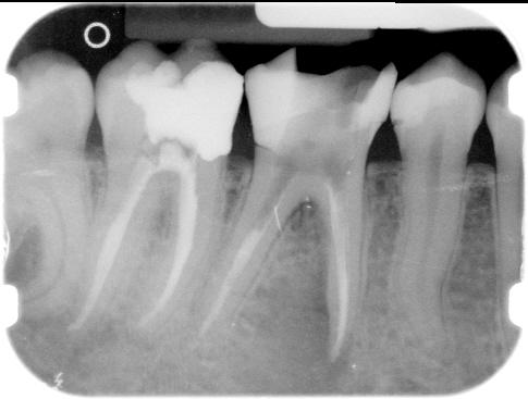 Endodonzia 1