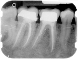 Endodonzia 4