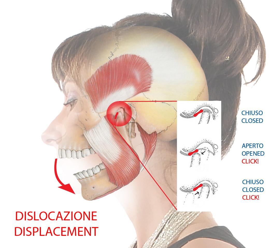 Articolazione Temporo Mandibolare Dislocazione (Click)