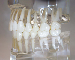 dentatura sinistra