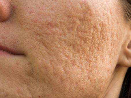 Get Rid of Acne Scars  摆脱暗疮疤痕