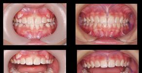 小児矯正 八重歯が変なところから生えてきた。