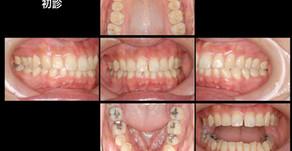 顎が痛い・口が開かない・左側顎関節症(31歳・男性)