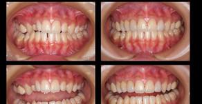 審美歯科症例:オールセラミック治療(20歳・女性)