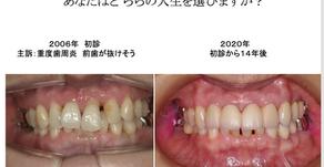 インプラントの長期症例(千葉県)