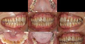 顎関節症治療×歯周病治療×矯正治療×咬合再構成(57歳・女性)