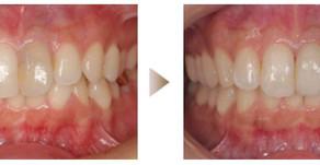 審美歯科症例:オールセラミック(29歳・女性)