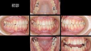歯並びを治したい(27歳・男性)