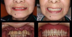 咬合再構成、重度歯周病の症例(83歳・女性)