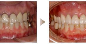 審美歯科症例:セラミック治療