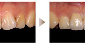 審美歯科症例:セラミック治療(22歳・女性)