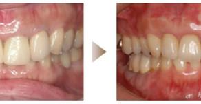 審美歯科症例:オールセラミック治療