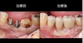 歯周病で歯茎痩せた 歯茎移植治療(歯周形成外科)
