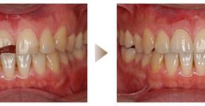 審美歯科症例:オールセラミック(28歳・男性)