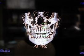 船橋市のつかだ歯科医院 歯科用CT