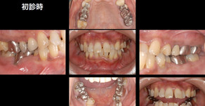歯周病を治したい・歯がどんどん動いてきて出っ歯になってきた(62歳・女性)
