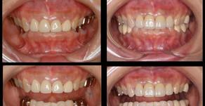 審美歯科症例:オールセラミック治療(48歳・女性)