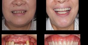 重度歯周病で入れ歯が割れやすく、歯が移動してきて、かみ合わせが悪い(船橋)