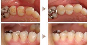 審美歯科症例:セラミックインレー