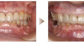 審美歯科症例:オールセラミック(67歳・女性)