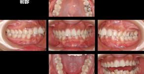 前歯が欠けた・歯並びが気になる・歯ぎしりがひどい(24歳・女性)