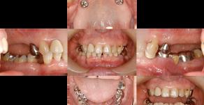重度歯周病、歯の欠損により咬合崩壊、顎関節症も併発(66歳・女性)